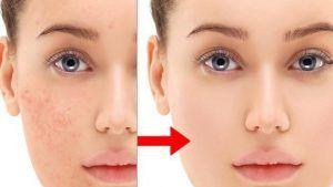 Aceite de coco para eliminar el acne y las manchas del rostro