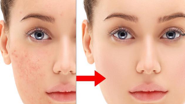 aceite de coco y bicarbonato para el acne