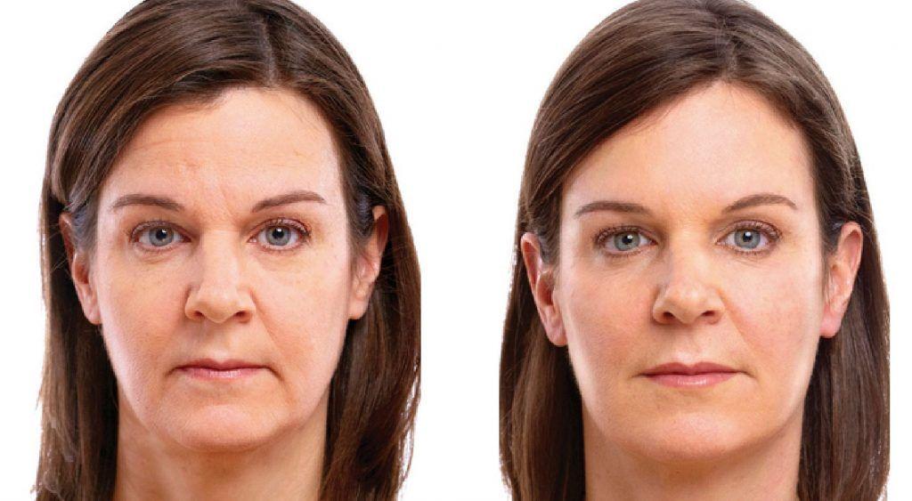 Aceite de coco elimina las arrugas de tu rostro