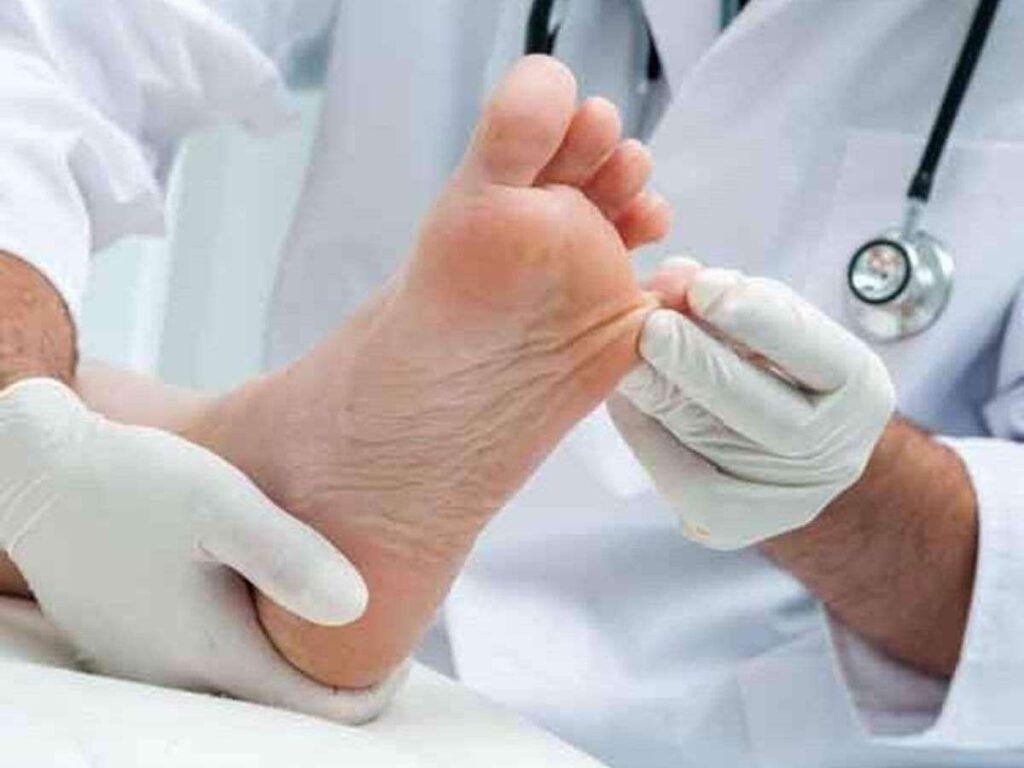 aceite de coco como remedio para la infección de los pies