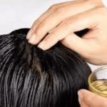 eliminar canas con aceite de coco